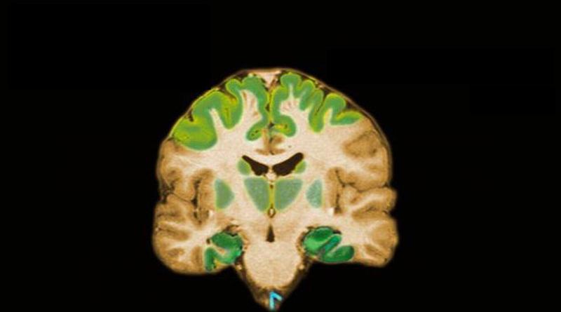 """Alzheimer, dalla diagnosi al """"prendersi cura"""""""