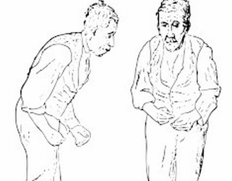 Il trattamento della malattia di Parkinson