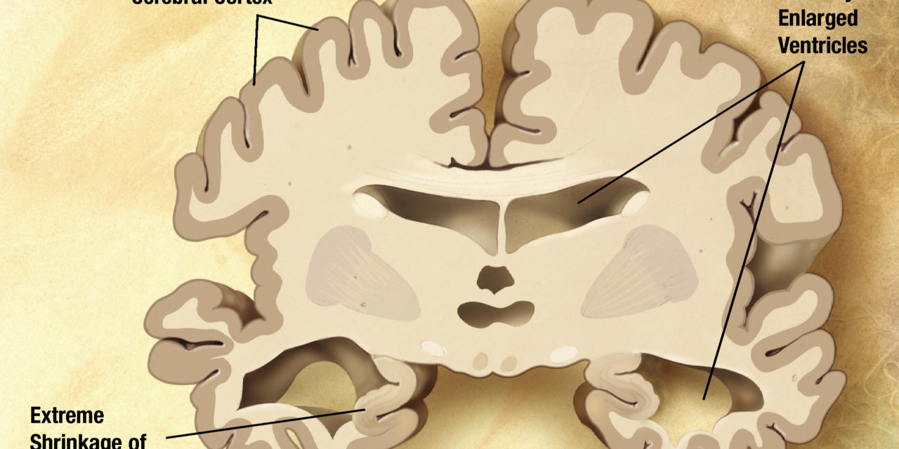 Una nuova era nella prevenzione dell'Alzheimer?