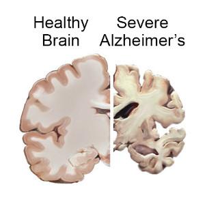 Un percorso insieme contro le demenze