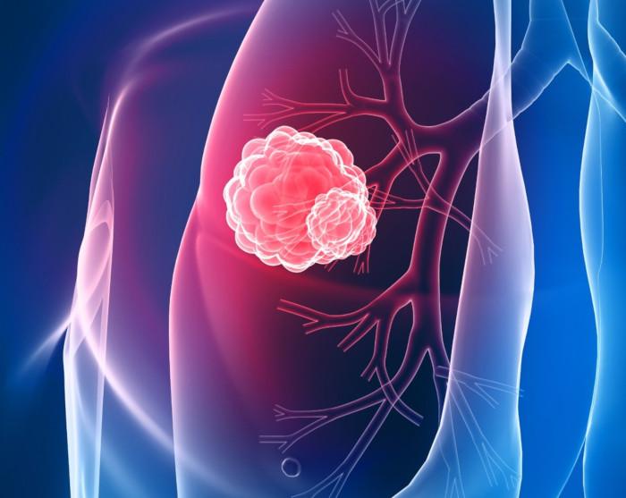 """Ausl: """"Non è vero che a Imola vi sia un eccesso di tumori rispetto alla media regionale"""""""