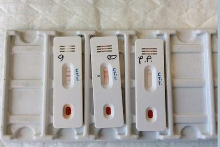 "Coronavirus: Regione Emilia Romagna, ""No ai test fai da te"""